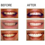 Denta Care-Smile For Whitening Tooth- 3 Bottle on 45% Off, On Sale Price,